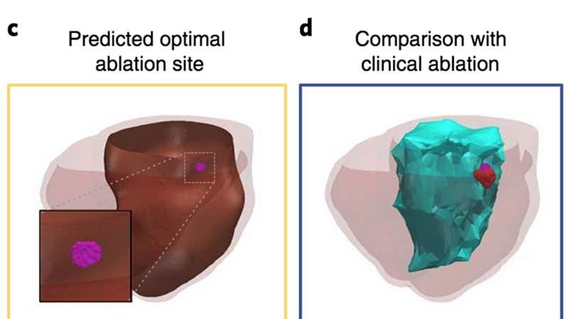 Chart shows side by side model and actual heart ablation