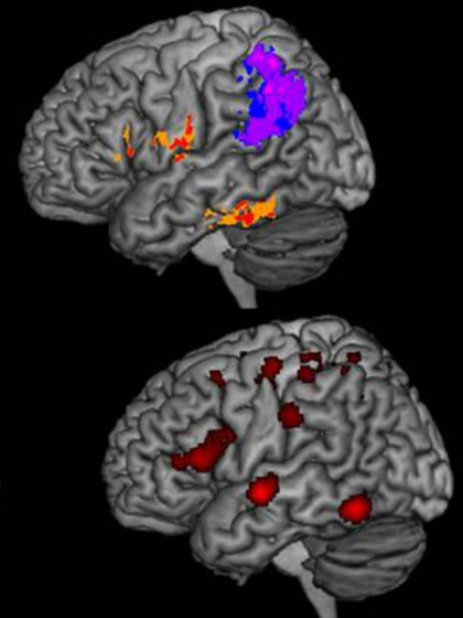 Top: A composite image showing the brain lesions of people with spelling difficulty after strokes. Bottom: An image of a healthy brain depicting the regions typically active during spelling