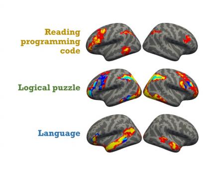 Graphic of brain activity