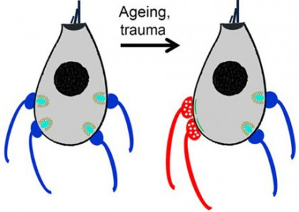 Diagram of age-related hearing loss