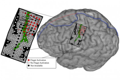 An illustration showing the electrode array on the subject's brain, including a representation of what part of the brain controls each finger