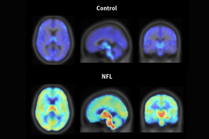 A composite image shows three scans of a control-subject's brain on top. The brain is mostly dark blue with a few traces of light blue. Below is an NFL player's brain, which is mostly like blue/green with areas of red and orange