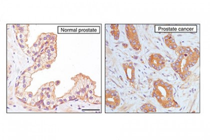 Left image shows orderly structure and brown objects located on the exterior of a cell; right image shows random clusters of brown objects throughout purple cellular structures