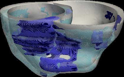 3D heart image