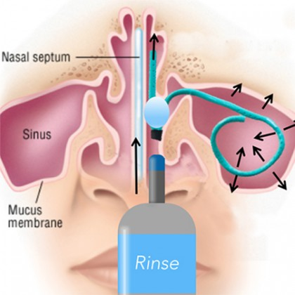 A diagram of the inside of the nose featuring the Salient ENT device