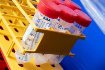 Saliva samples for COVID-19 testing