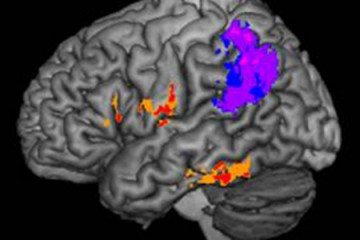 A composite image showing the brain lesions of people with spelling difficulty after strokes