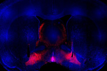 Brain structures, mostly in blue, with bright red triangular areas toward the bottom
