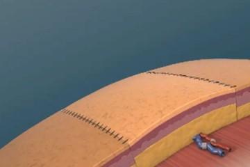 EchoSure animation