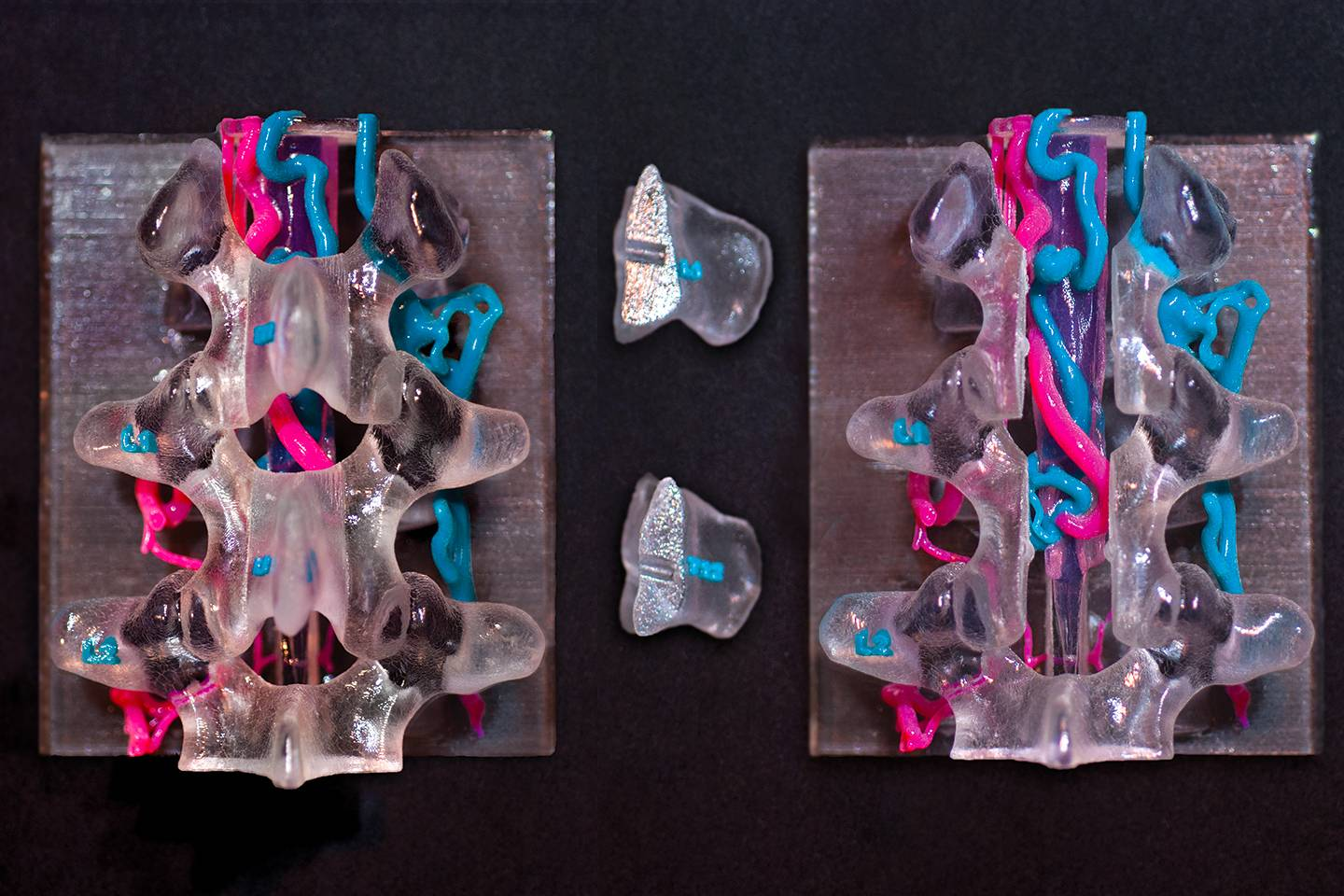 3D printed spine and veins