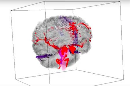 hopkins engineers use digital tools to tackle concussion impact research |  hub