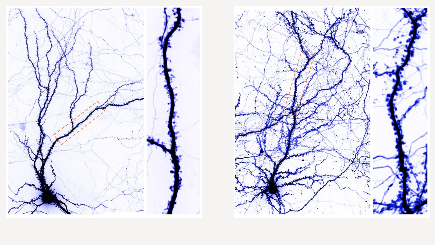 Left images show a normal neuron, and the right image shows an enlarged neuron