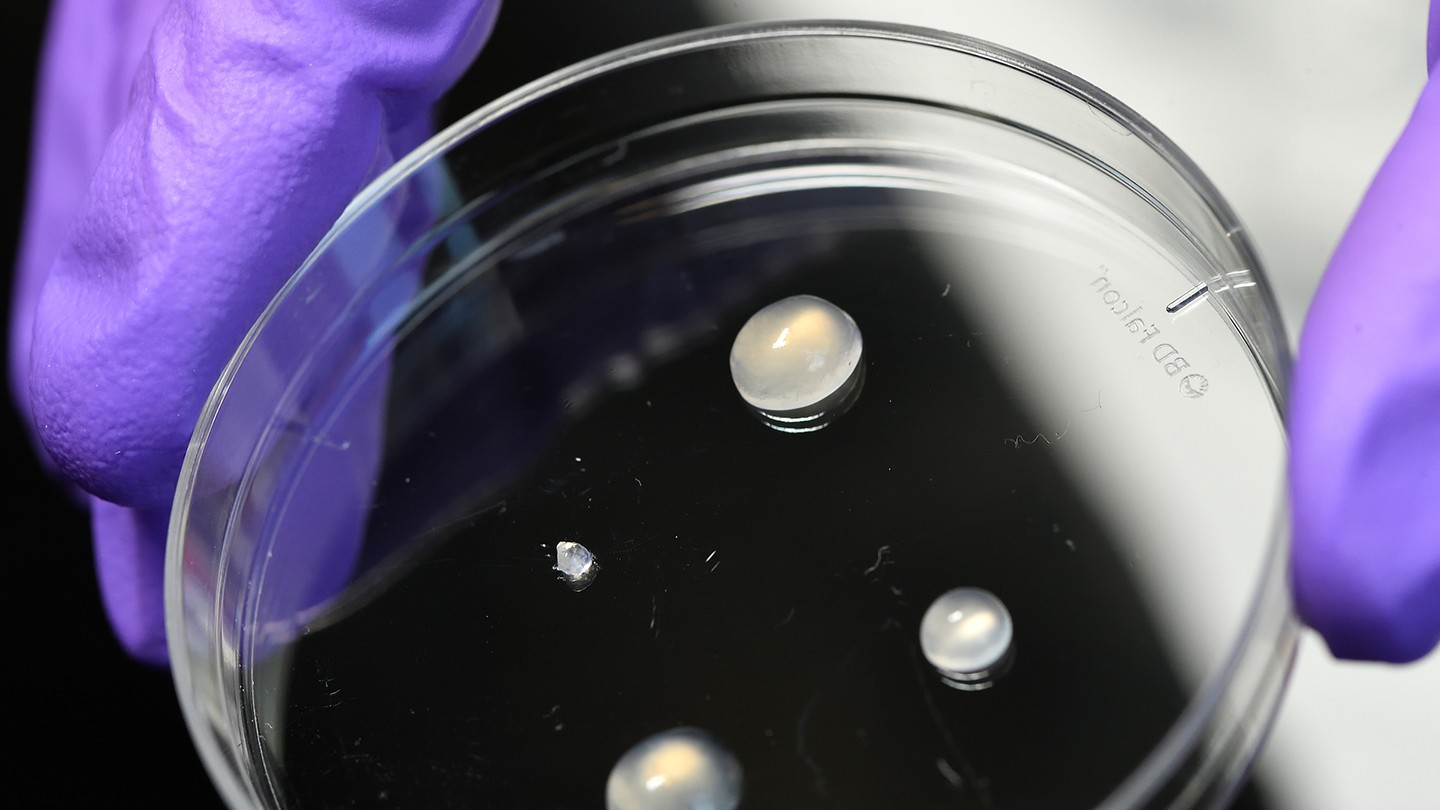 Hydrogels in a petri dish