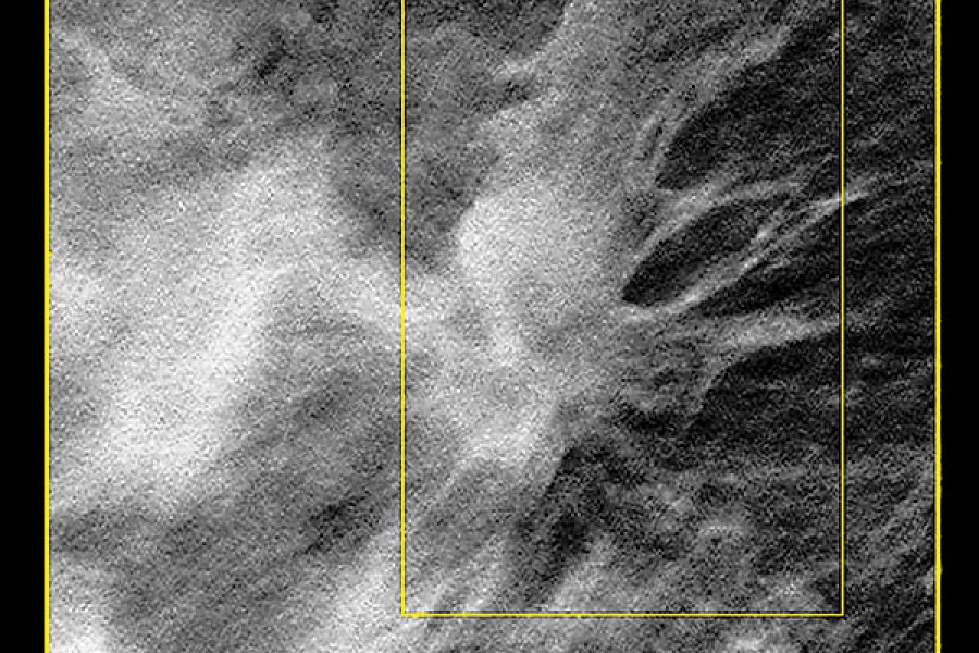 3 D Mammography Could Lead To Earlier Detection Of Breast Cancer Hub