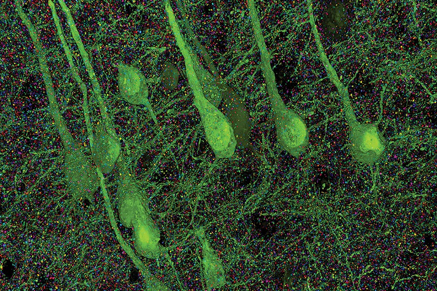 Microscopic images of the human brain
