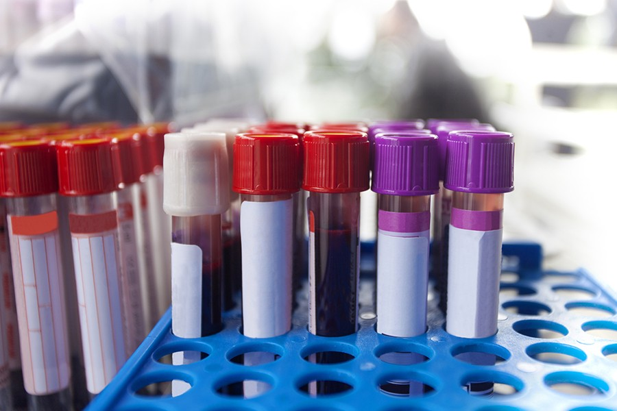 Test tubes containing blood stand in a test tube rack ready for testing