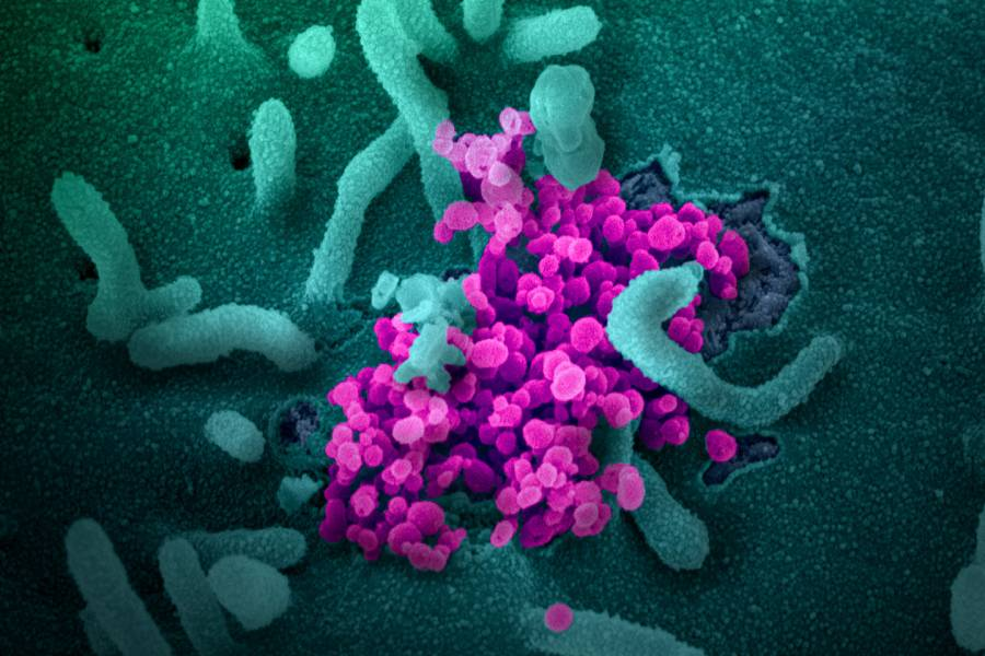 Image of virus and cells
