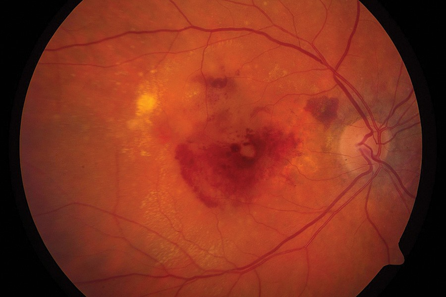 Damage to a retina from wet macular degeneration.