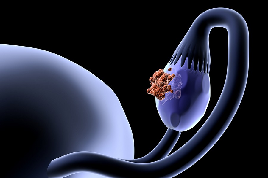What causes ovarian cancer? New study suggests the root may be found