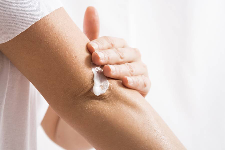 Woman applies white cream to her elbow