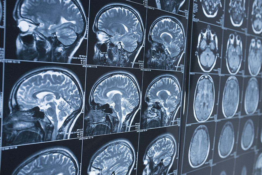 تحریک عمیق مغزی برای درمان آلزایمر موثر نیست