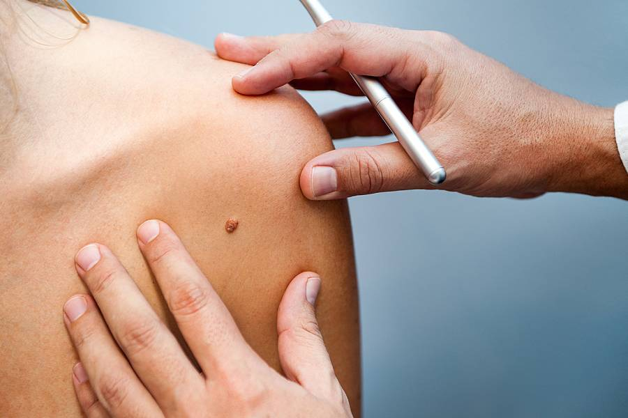 Doctor examines a mole on a woman's shoulder